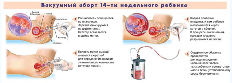 abort-14