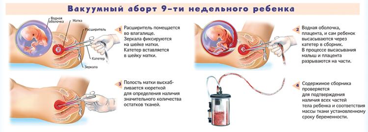abort-9